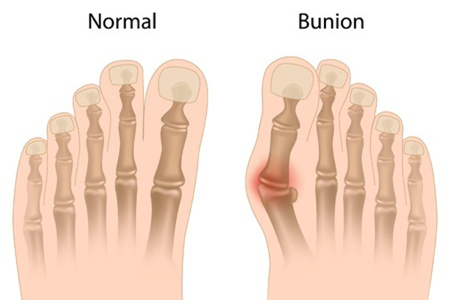 BIG TOE PAIN AND BUNIONS - FOOT CLINIC - FLEMINGTON, MOONEE PONDS AND ESSENDON