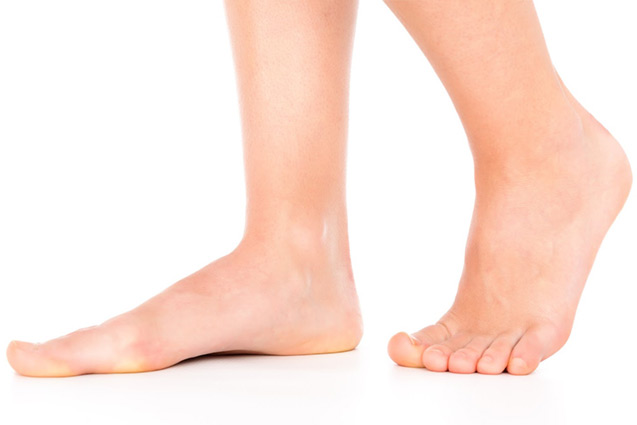 flat feet fallen arches can be painful