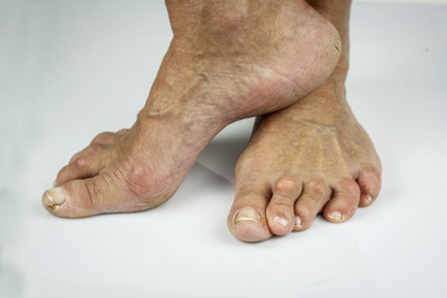 Hammer toe and arthritis