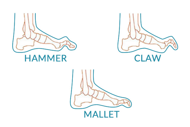 claw toe, hammer toe, mallet toes